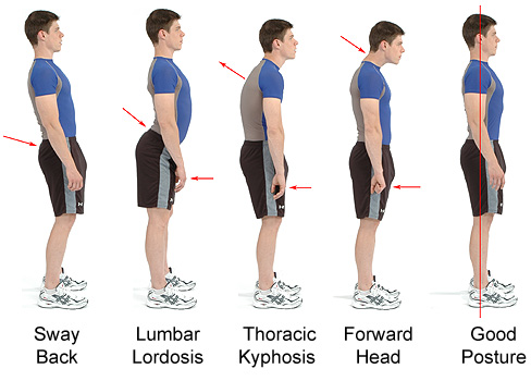 poor-posture-sequence1